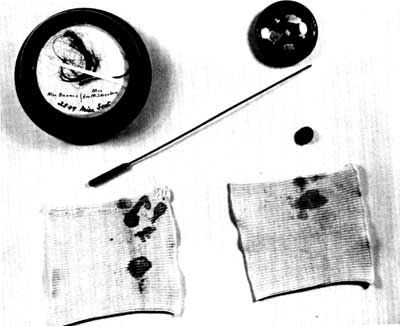 Lincoln specimens. Fragments of the bone and strands of hair from site of the gunshot wound to the head, surrounded by the blood-stained shirt cuff of Dr. Edward Curtis. Note the probe Dr. Curtis used to locate the bullet. (The National Museum of Health and Medicine)